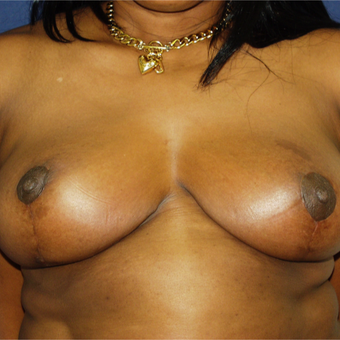 25-34 year old woman treated with Breast Reduction after 3161838