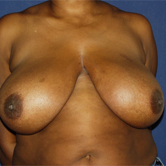 25-34 year old woman treated with Breast Reduction before 3161838