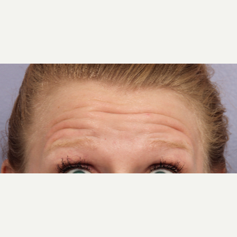 25-34 year old woman treated with Botox before 3660275