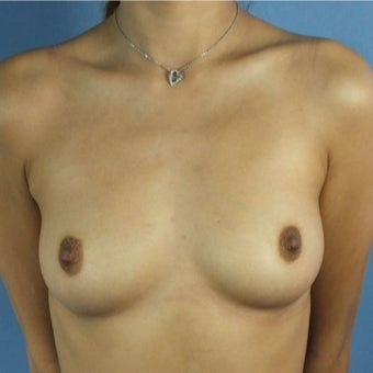 25-34 year old woman treated with Breast Augmentation before 2287359