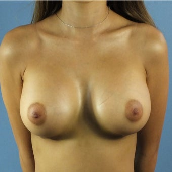 25-34 year old woman treated with Breast Augmentation after 2287359