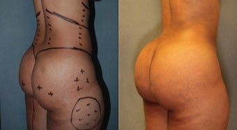 28 year old woman treated with Fat Transfer to Buttock.  Gained 4 Inches