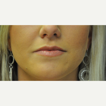 25-34 year old woman treated with Juvederm before 2881437
