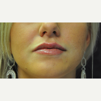 25-34 year old woman treated with Juvederm after 2881437
