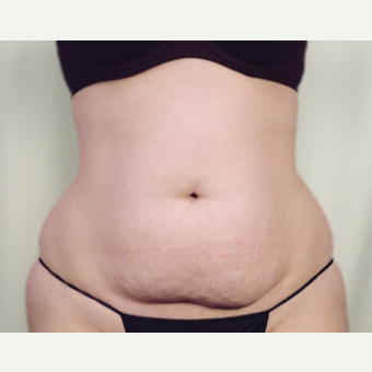 35-44 year old woman treated with Tummy Tuck before 3026094