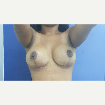 25-34 year old woman treated with Breast Lift with Implants after 3650073