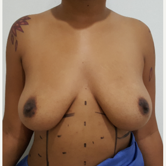 25-34 year old woman treated with Breast Lift with Implants before 3650073