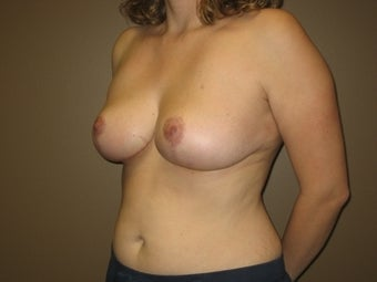 36 Year Old Breast Reduction Patient after 1365340