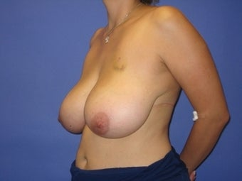 36 Year Old Breast Reduction Patient before 1365340