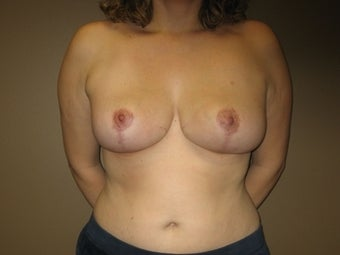 36 Year Old Breast Reduction Patient 1365340