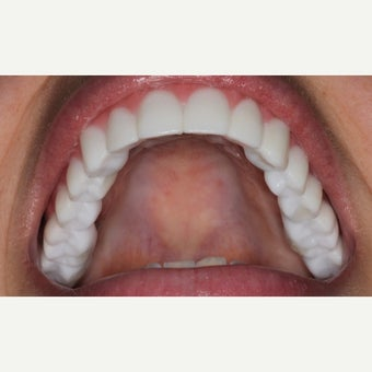 25-34 year old woman treated with All-on-4 Dental Implants after 2184199