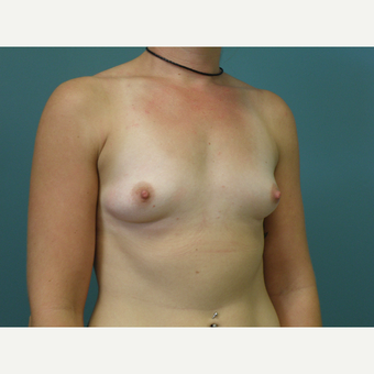 25-34 year old woman treated with Breast Augmentation before 3035161