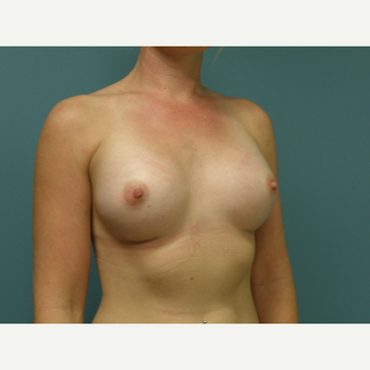 25-34 year old woman treated with Breast Augmentation after 3035161