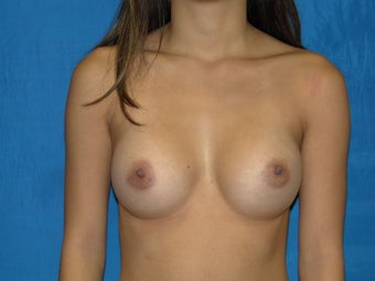 Breast Augmentation 300 cc Silicone Implants after 977626