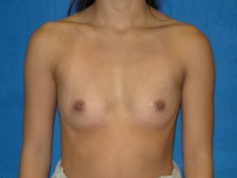 Breast Augmentation 300 cc Silicone Implants before 977626