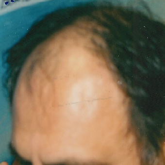 45-54 year old man treated with Hair Transplant before 3494798