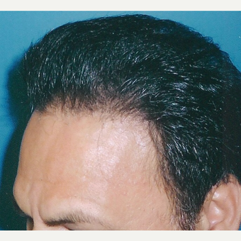 45-54 year old man treated with Hair Transplant after 3494798