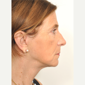 55-64 year old woman treated with Facelift after 3622396