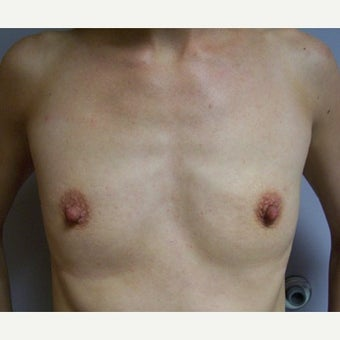 25-34 year old woman treated with Breast Augmentation before 1602218
