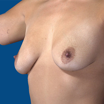 35-44 year old woman treated with Breast Augmentation before 3848601