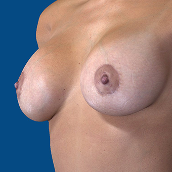 35-44 year old woman treated with Breast Augmentation after 3848601