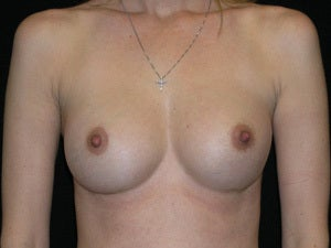 Breast Augmentation after 941017