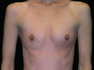 Breast Augmentation before 941017