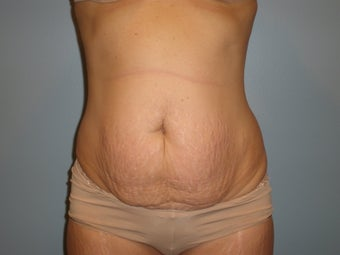 Abdominoplasty  before 369019