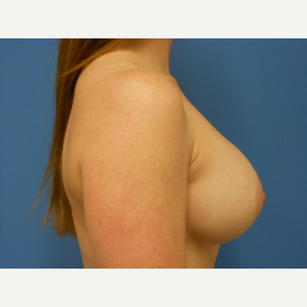 25-34 year old woman treated with Breast Augmentation and lift after 3657746