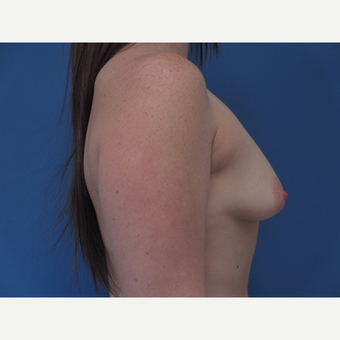 25-34 year old woman treated with Breast Augmentation and lift before 3657746