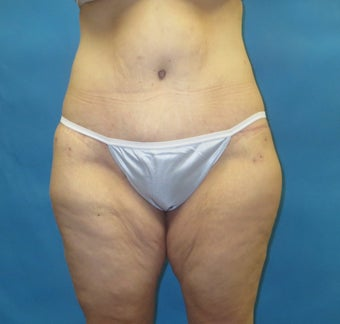 Body contouring after massive weight loss after 1420344