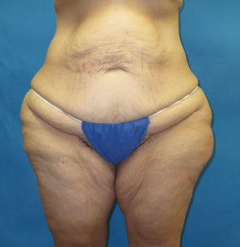 Body contouring after massive weight loss before 1420344