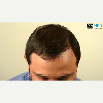 35-44 year old man treated with 4200 Grafts FUE Hair Transplant after 3091552