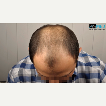 35-44 year old man treated with 4200 Grafts FUE Hair Transplant before 3091552