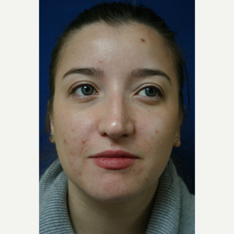 18-24 year old woman treated with Rhinoplasty before 3110089