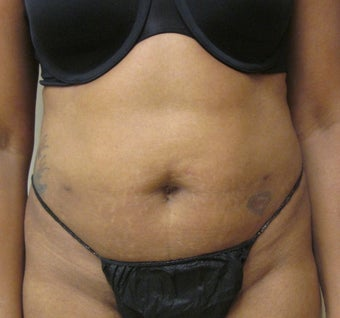 45 year old woman who underwent SmartLipo of the abdomen, flanks and upper back