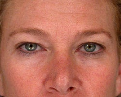 Eyelid Surgery before 280382