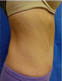 45-54 year old woman treated with Tummy Tuck 1838680