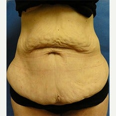 45-54 year old woman treated with Tummy Tuck before 1838680