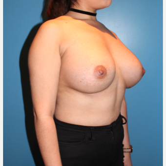 25-34 year old woman treated with Breast Augmentation after 3806195