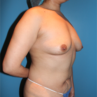 25-34 year old woman treated with Breast Augmentation before 3806195