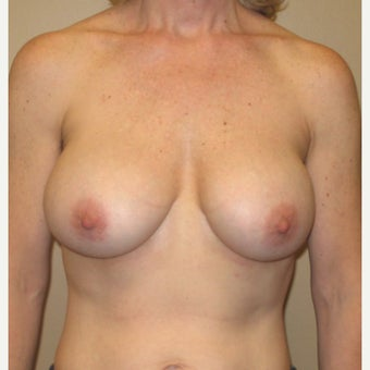 45-54 year old woman treated with Breast Implant Removal before 1606699