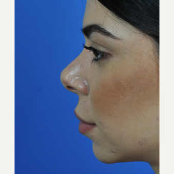 Open Revision Rhinoplasty before 3011182