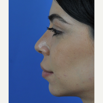 Open Revision Rhinoplasty after 3011182