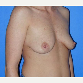 Breast Augmentation before 3206595