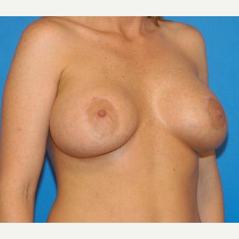 Breast Augmentation after 3206595