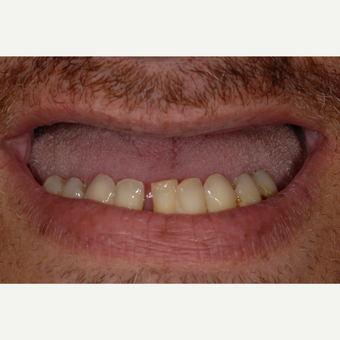 45-54 year old man treated with Smile Makeover before 3560191