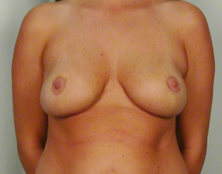 30 year old woman treated with Mommy Makeover: Breast Lift & Reduction after 3026483
