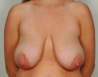 30 year old woman treated with Mommy Makeover: Breast Lift & Reduction before 3026483