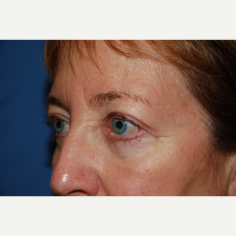 45-54 year old female treated with Eyelid Surgery after 3782115
